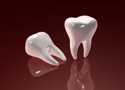 razmišljaš o beljenju zob?